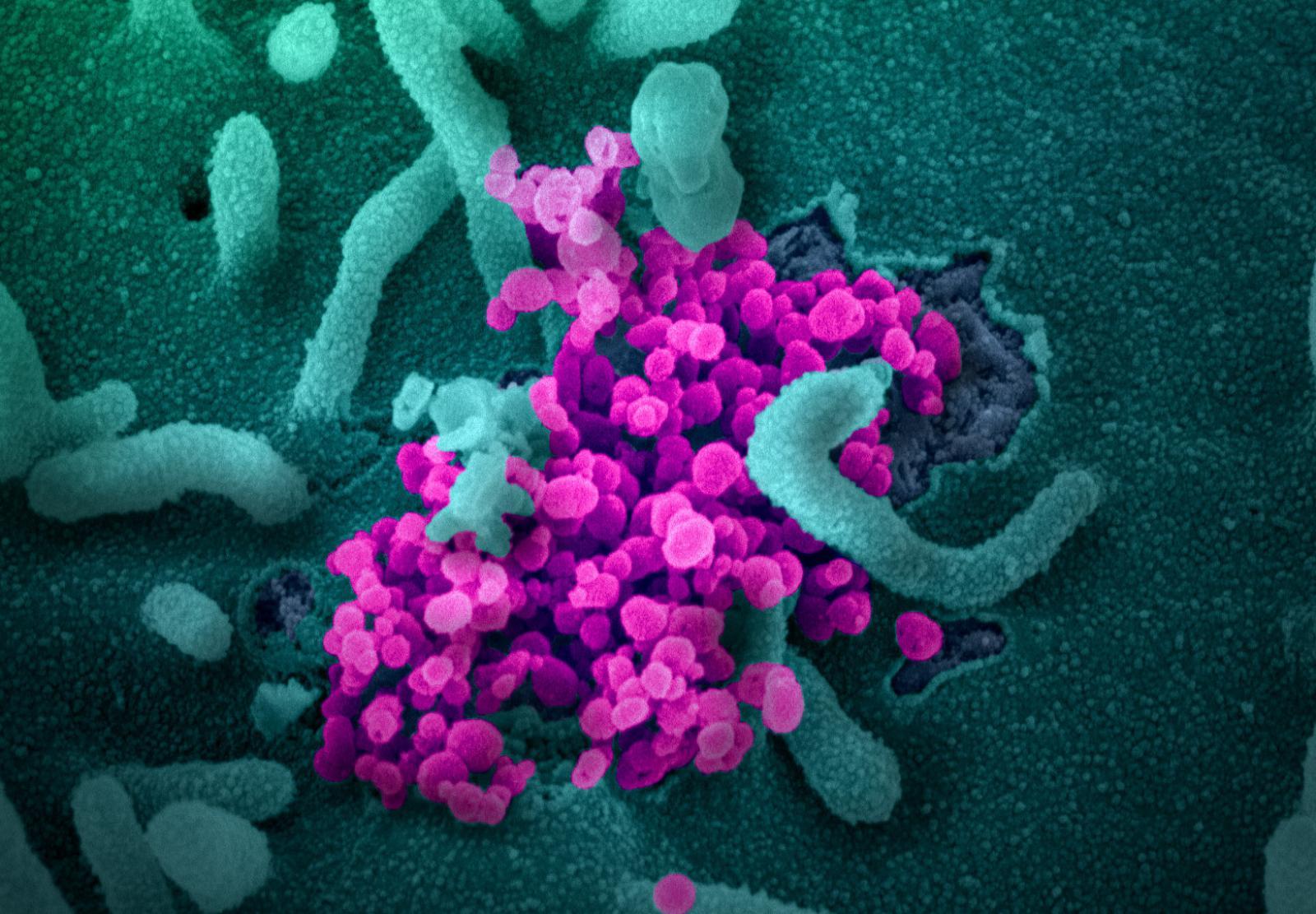 coronavirus sintomi e conseguenze