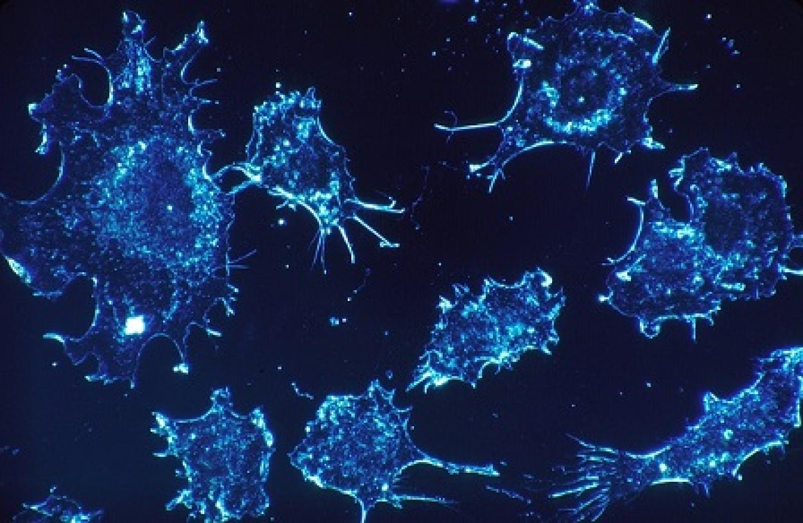 Cellule tumorali. Credit: Skeeze /               Pixabay. Licenza: CC0 1.0.