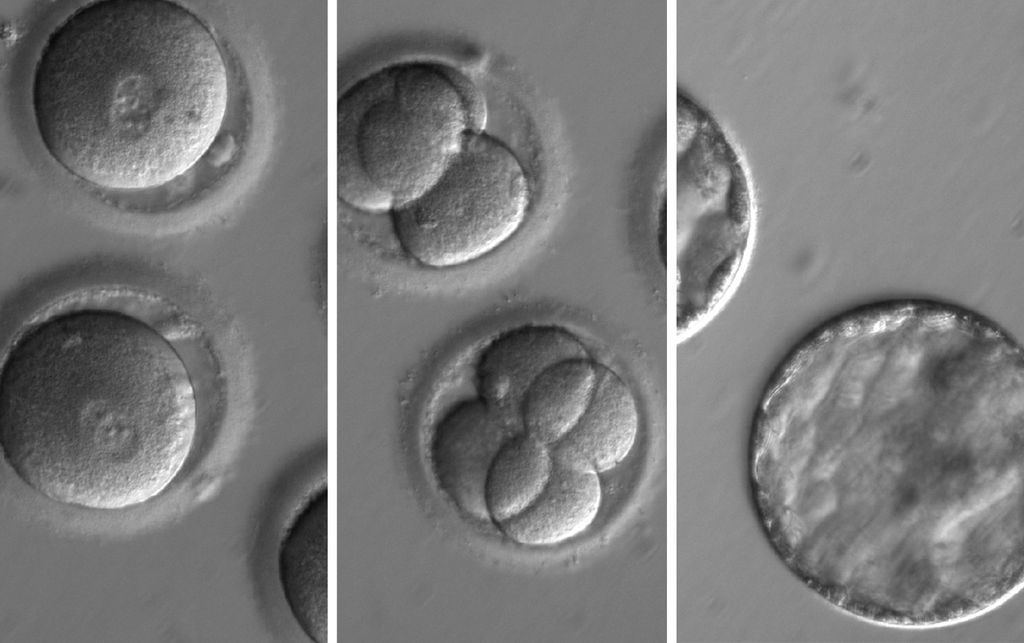 This sequence of images shows the development of embryos after co-injection of a gene-correcting enzyme and sperm from a donor with a genetic mutation known to cause hypertrophic cardiomyopathy.  Credit: Oregon Health and Science University.